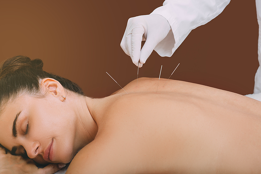 Acupuncturist hand with needles in a woman's back