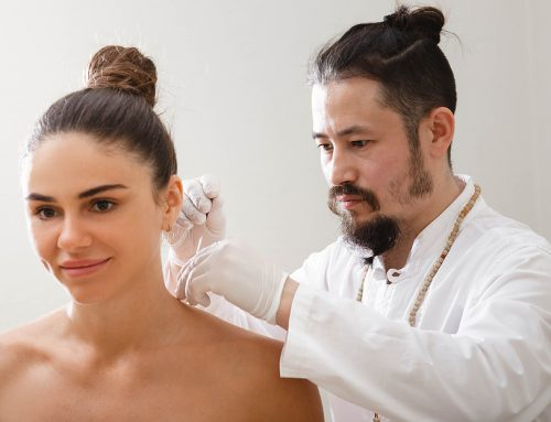Benefits of Acupuncture In Toowoomba